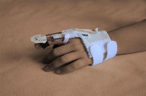 Schienenbehandlung Ergotherapie Flöck